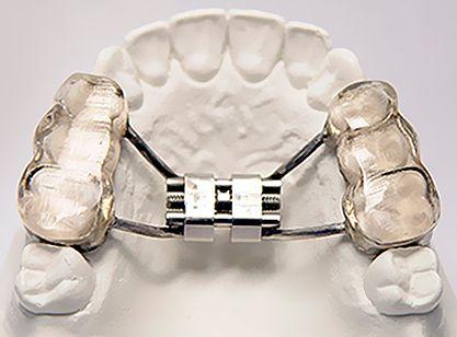 Не съемные ортодонтические аппарат