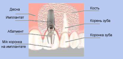 Отбеливание зубов пример работы