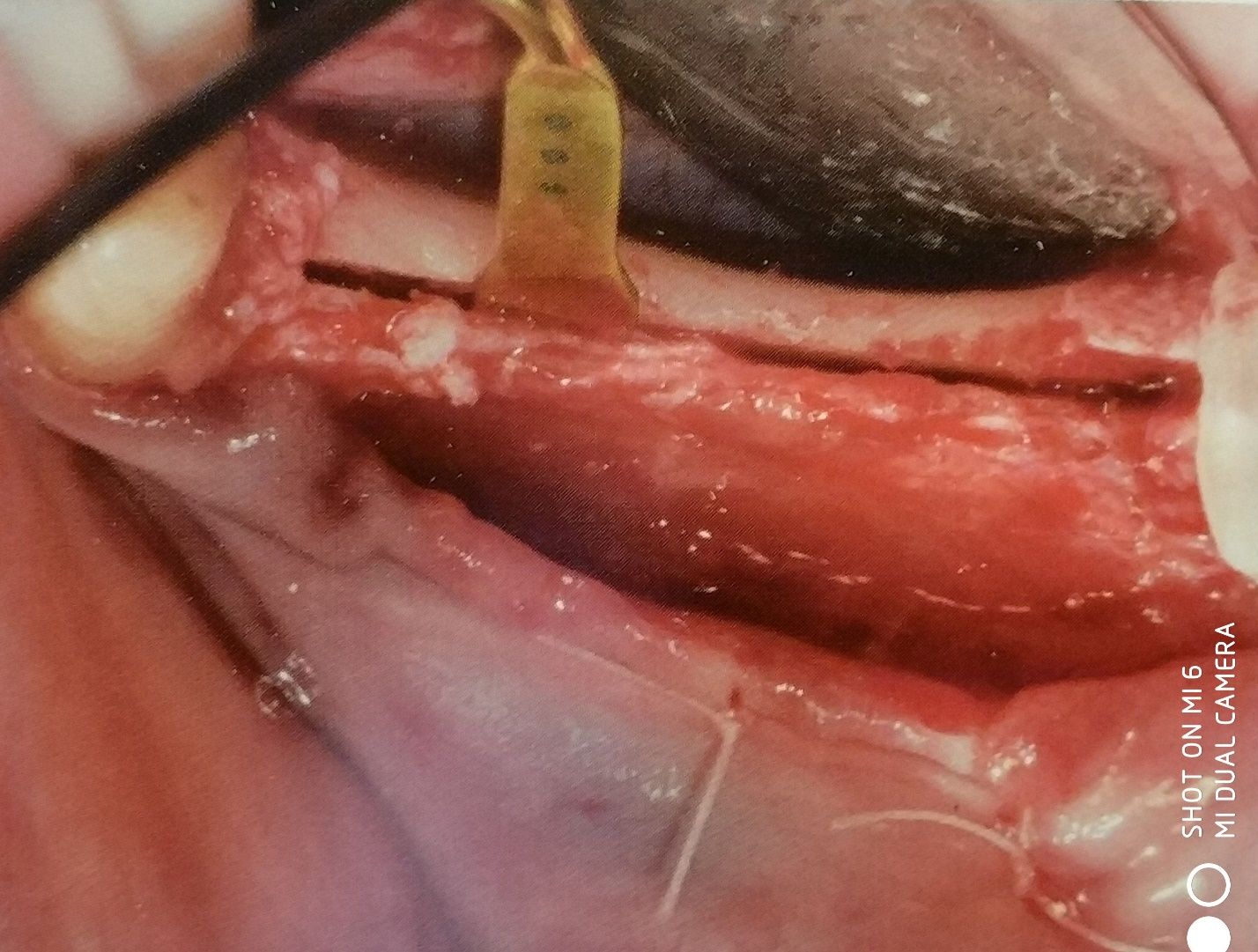 Удалиние зубов